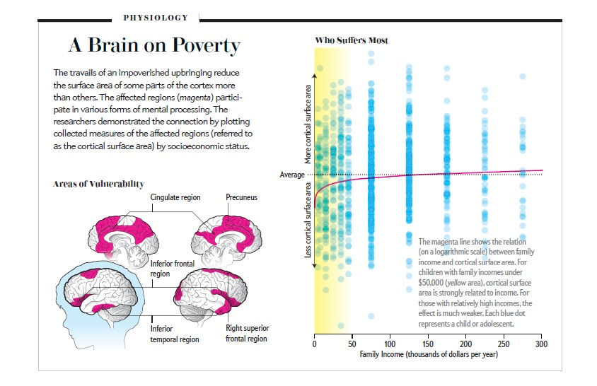 Poverty Linked To Brain Structure In >> Undoing Poverty S Negative Effect On Brain Development With Cash