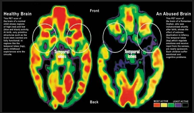 Undoing poverty's negative effect on brain development with cash transfers –Cameron McLeod.