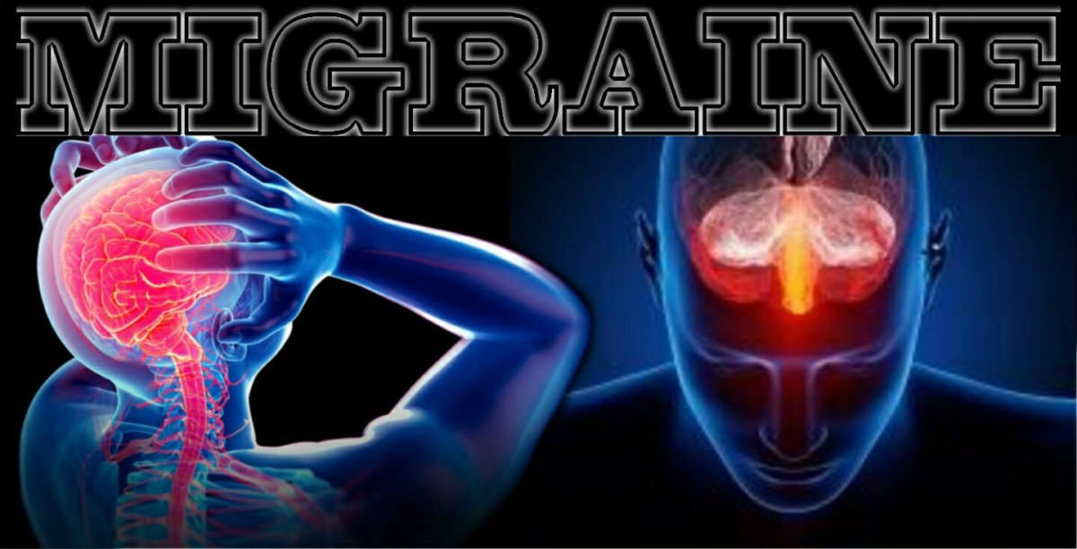 MIGRAINE AND DEPRESSION: It's All The Same Brain - Gale Scott * Migraine May Permanently Change Brain Structure - American Academy of Neurology * Migraine: Multiple Processes, Complex Pathophysiology - Rami Burstein, Rodrigo Noseda, and David Borsook.